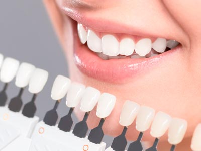 Porcelain Veneers - Dr. Sun's In-House Lab can give you a perfect match