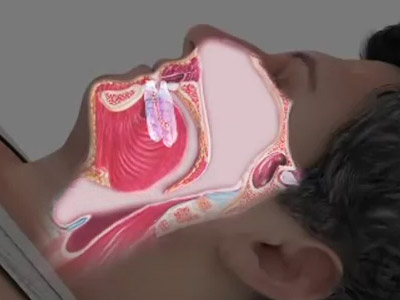 Oral sleep appliances are a great non-invasive alternative for treating OSA (Obstructive Sleep Apnea) or sleep related breathing disorders, such as UARS (Upper Airway Resistance Syndrome) and snoring (Click or Tap anywhere to close window)